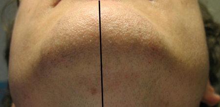 shave_2008_after.jpg